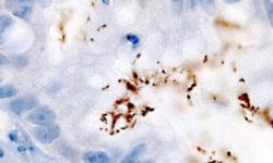 Антихеликобактерная терапия может снизить риск рака желудка на многие годы — исследование