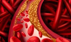 Врач Зенон Андреу назвал наиболее опасные симптомы повышенного холестерина